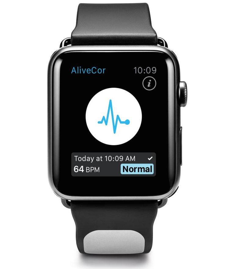 Apple Watch trong tương lai sẽ giúp ngăn ngừa đột quỵ